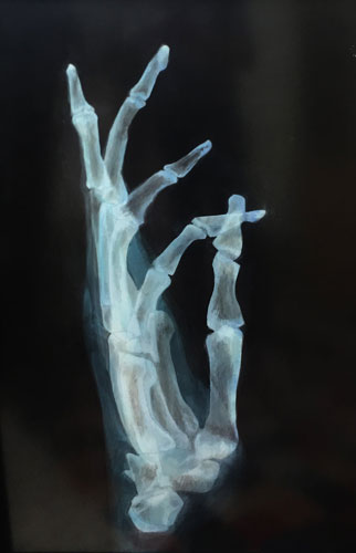image of painting x-ray hand